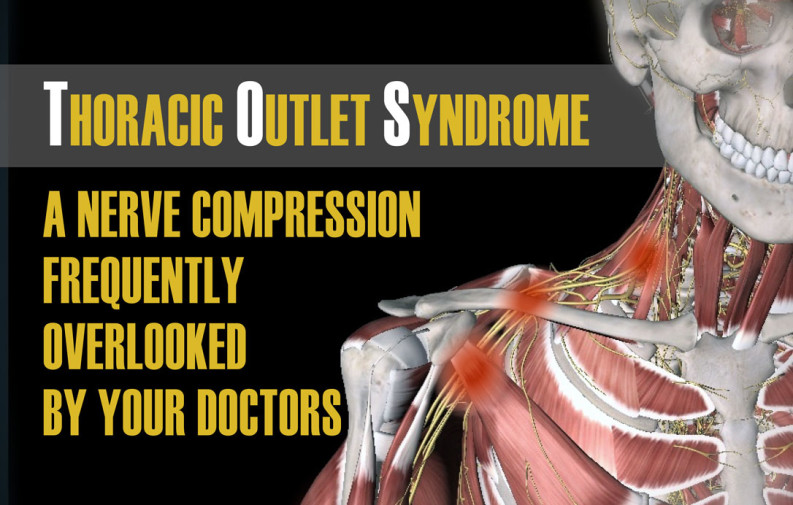 Thoracic Outlet Syndrome Chiropractor In Holland